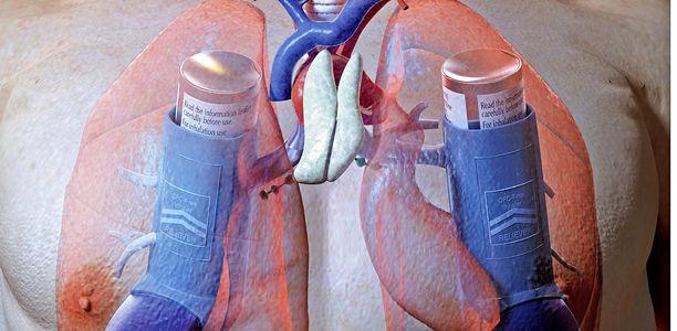 warum darf nicht aspirin mit asma einnemmen