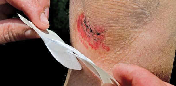 Bild zu Prellungen, Zerrungen, Wunden ... - Behandlung häufiger Verletzungen